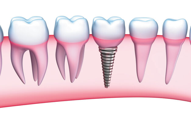 A+ Dental Cosmetic & Implants