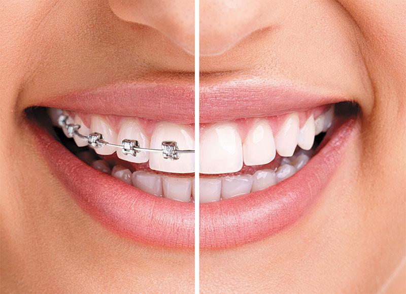 Avanced Dental Solutions
