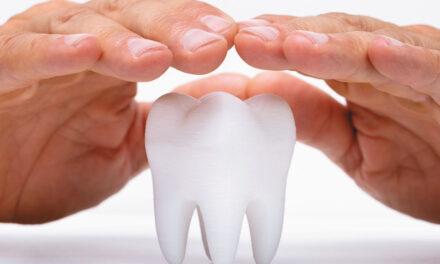 Hipoplasia defecto esmalte dental