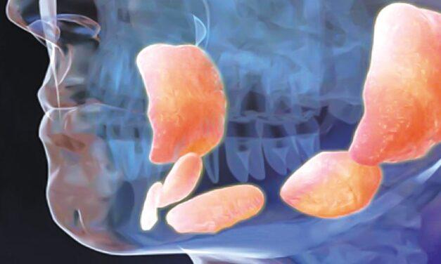 Las glándulas salivales y la salud de tu boca